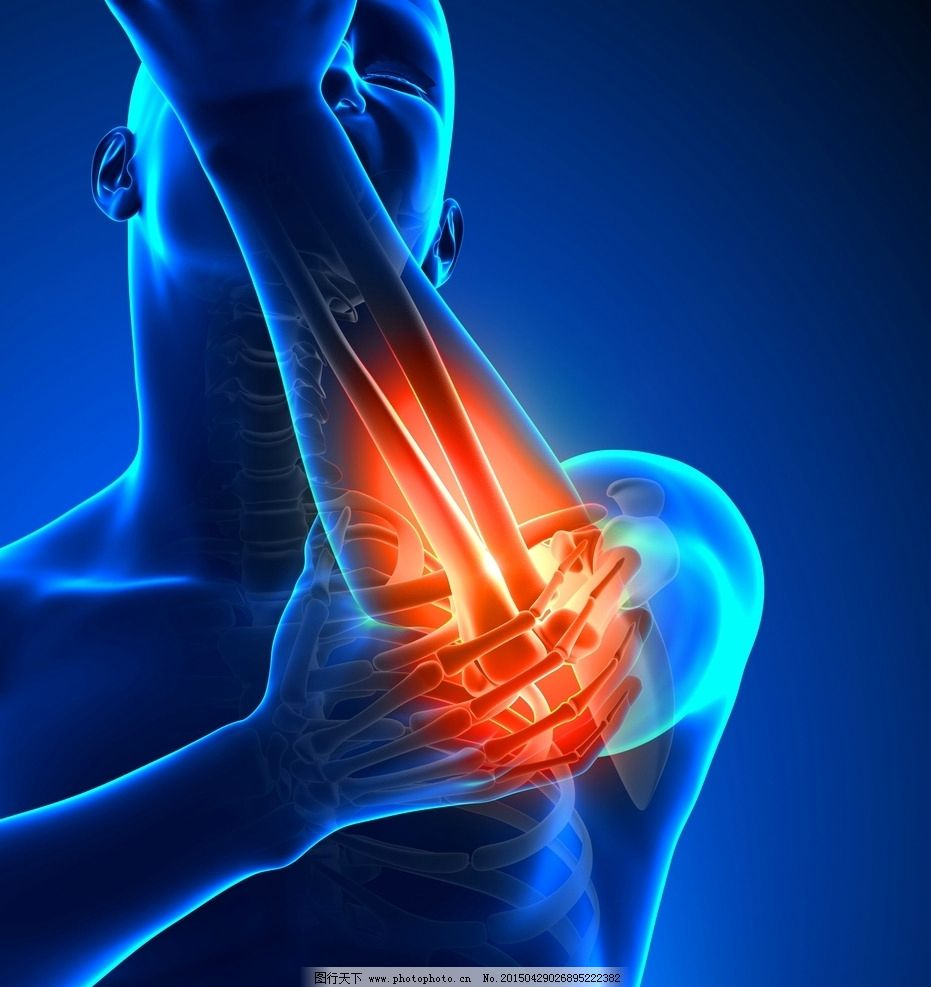 人体关节痛 医院 医疗 病痛示意图 病痛展示图 病痛 疾病 人体结构